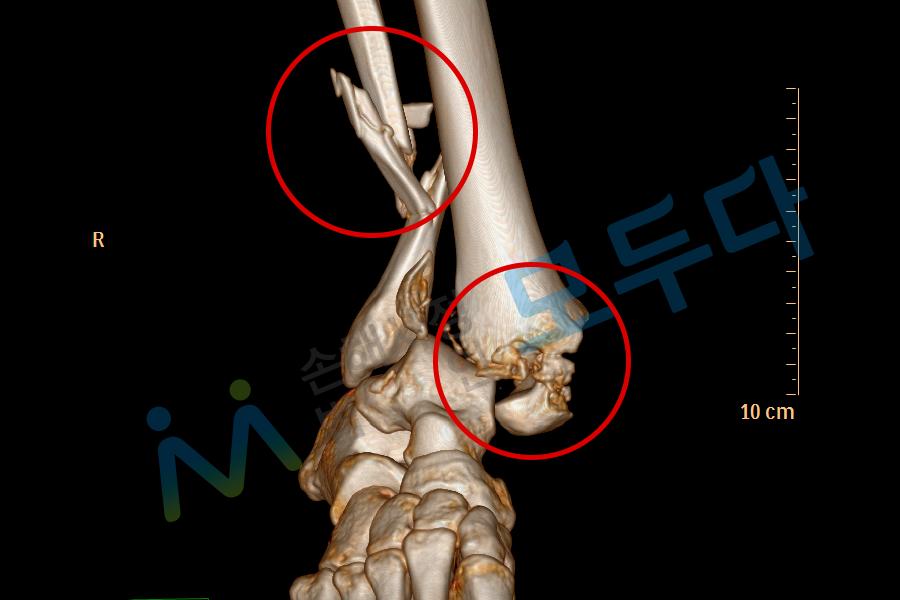 복사뼈 비골골절_1.png