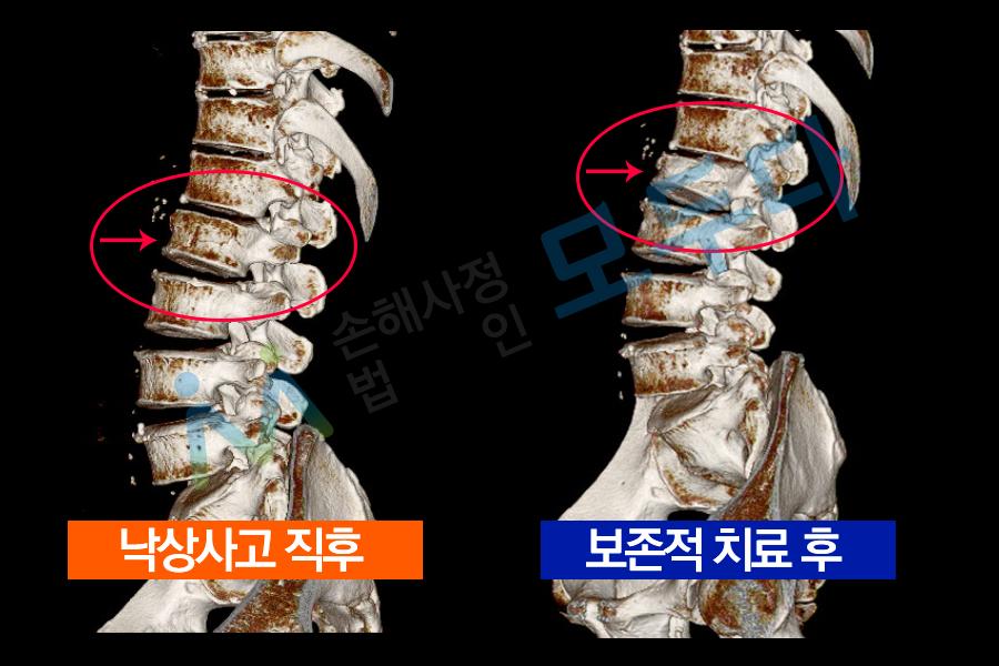 방출성골절_3D 검사.png