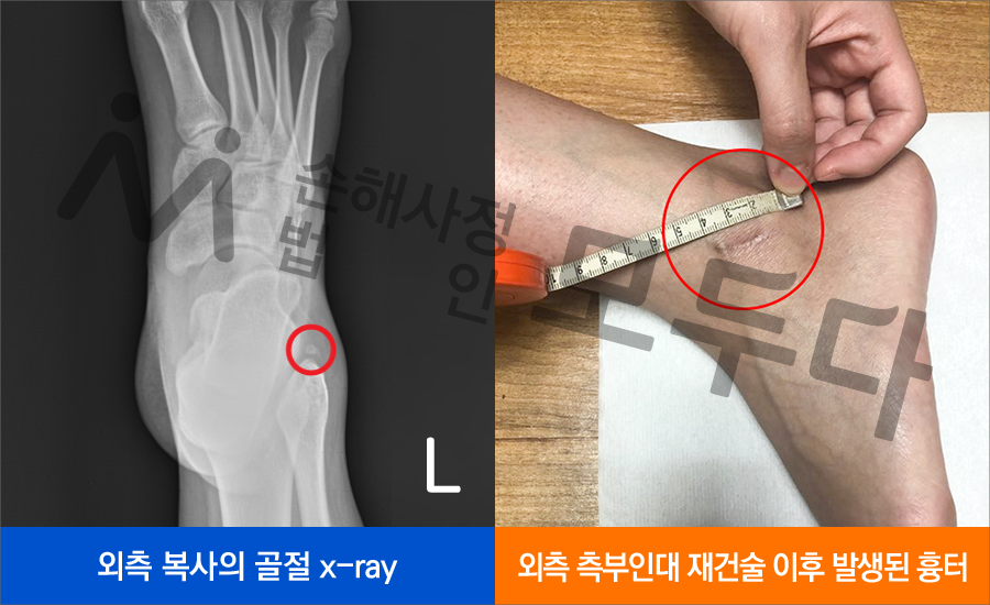 190729_x-ray.png