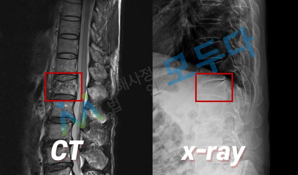 척추 요추1번 압박골절 x-ray.png
