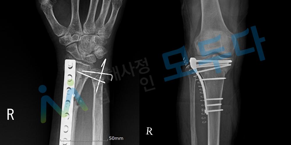 요골 척골 경골 골절 수술이후 x-ray.png