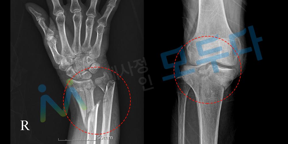요골 척골 경골 골절 x-ray.png